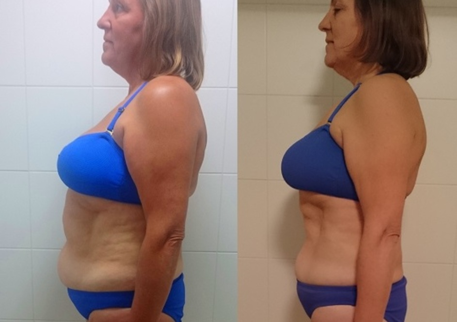 Jane - Fat Loss